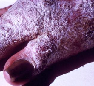 Глубокие или Системные микозы