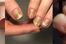 Симптомы и лечение Грибковой инфекции ногтей на руках