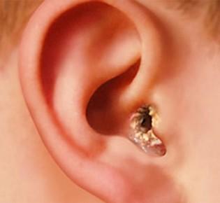 Диагностика и лечения грибка в ушах
