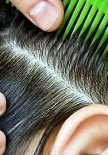 Чем лечить грибок кожи головы