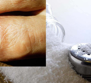 Как лечить грибок солью