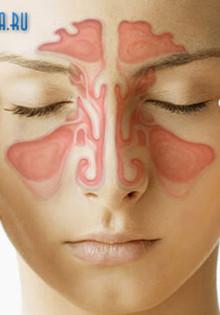 Как лечить микоз (грибок) носа