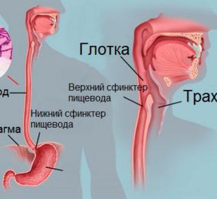 Правила лечения микоза в пищеводе