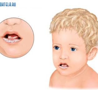 Молочница у детей во рту (грудного, месячного, годовалого)