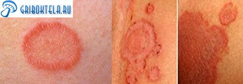 эпидермофития на коже фото