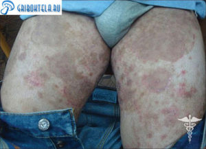 эпидермофития у мужчин в паху и на ногах фото