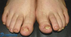 фото грибка ногтей на ногах