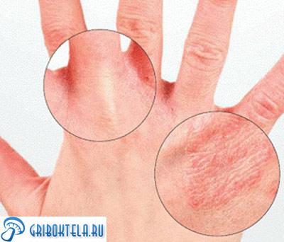 грибок между пальцами рук фото
