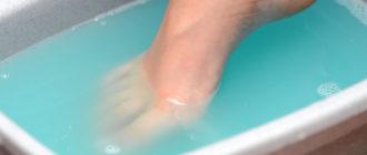 Лечение грибка ногтей перекисью водорода в ванночке