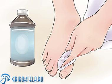 лечение ногтей ног перекисью водорода картинка