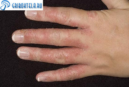 дрожжевой грибок на пальцах рук фото