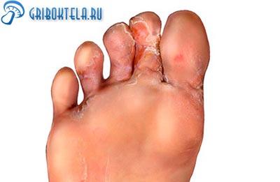 грибок между пальцами ног фото