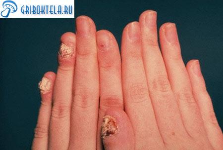 Кандидозная инфекция ногтей фото