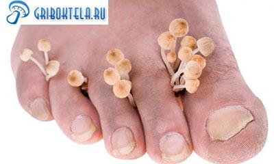 между пальцами ног грибы фото