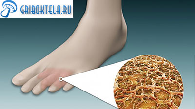 поражение пальцев ног грибком