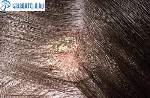 Грибок кожи на голове