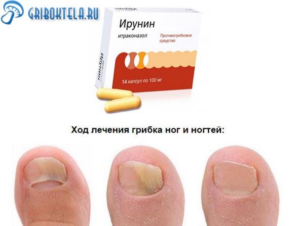 Хорошее лекарство для грибка ногтей
