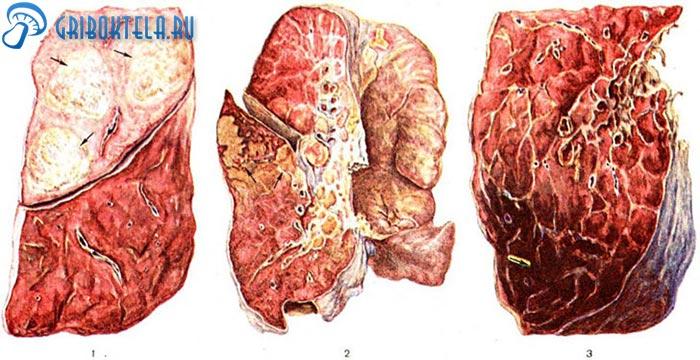 Гистоплазмоз легких