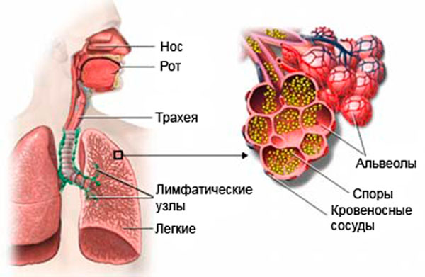 Области заражения аспергиллезом