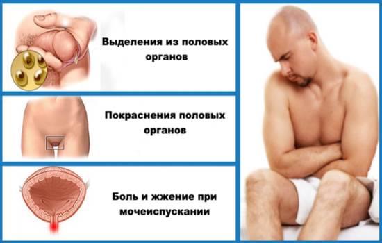 Урогенитальный кандидоз - симптомы у мужчин