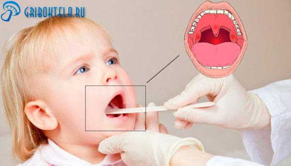 Диагностика грибка в горле у ребенка