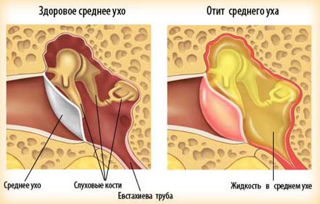 как выглядит отит уха