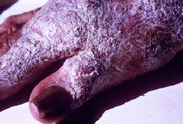 Глубокие микозы на руках - Хромомикоз