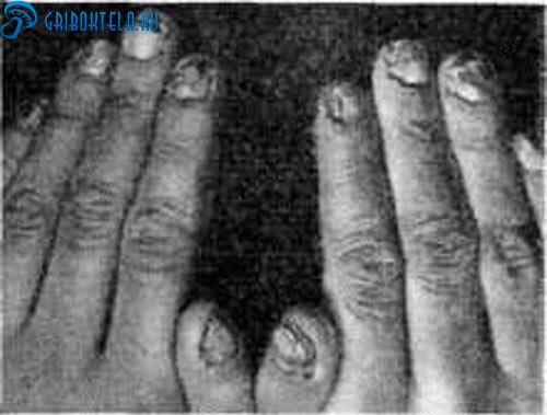 Хроническая форма стригущего лишая на ногтях
