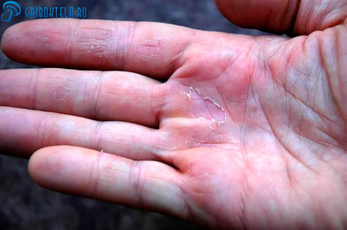 Микоз кожи рук