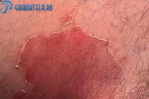 Паховая дерматофития