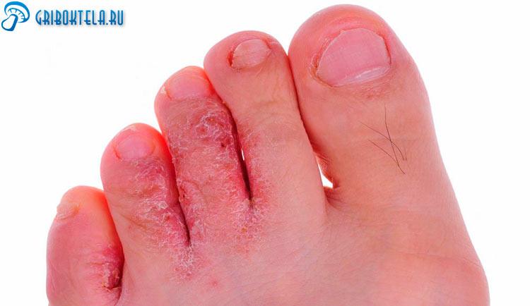 Грибок на пальцах ноги