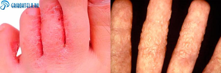 Грибок на пальцах рук и ног
