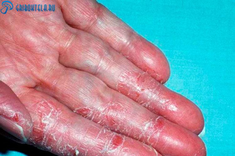 Грибок на коже пальцев ног
