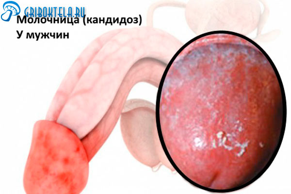 Чем лечить молочницу у мужчин половых органов thumbnail