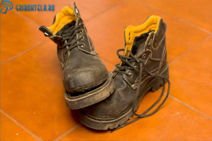 Плохая обувь как следствие грибка стопы