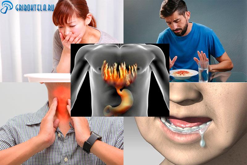 Симптомы грибка в пищеводе