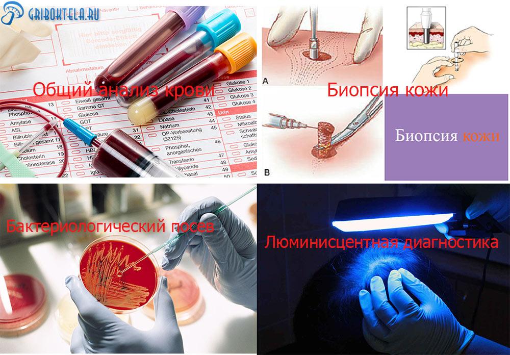 Основные способы диагностики розового лишая