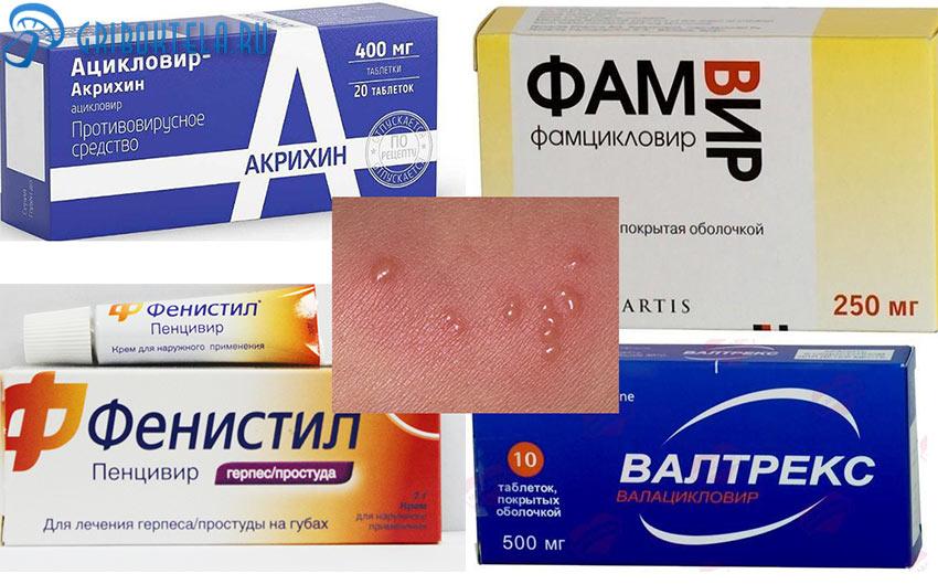 Лекарства для лечения пузырькового лишая