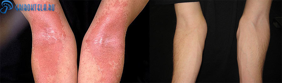 Мокнущий лишай на руках до и после лечения