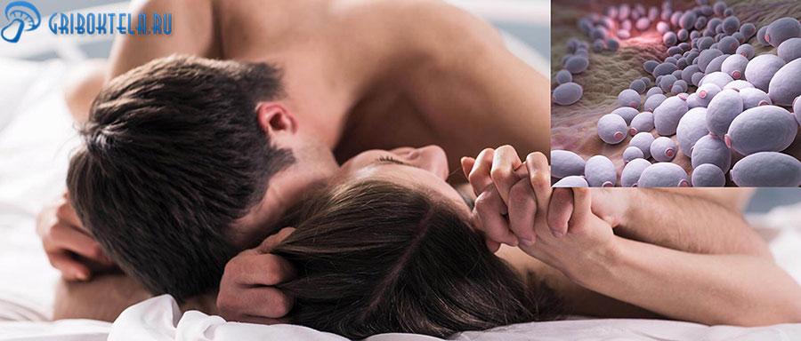 Молочница после секса
