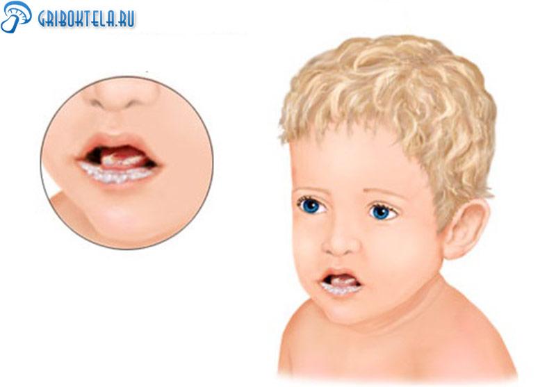 Молочница во рту у ребенка