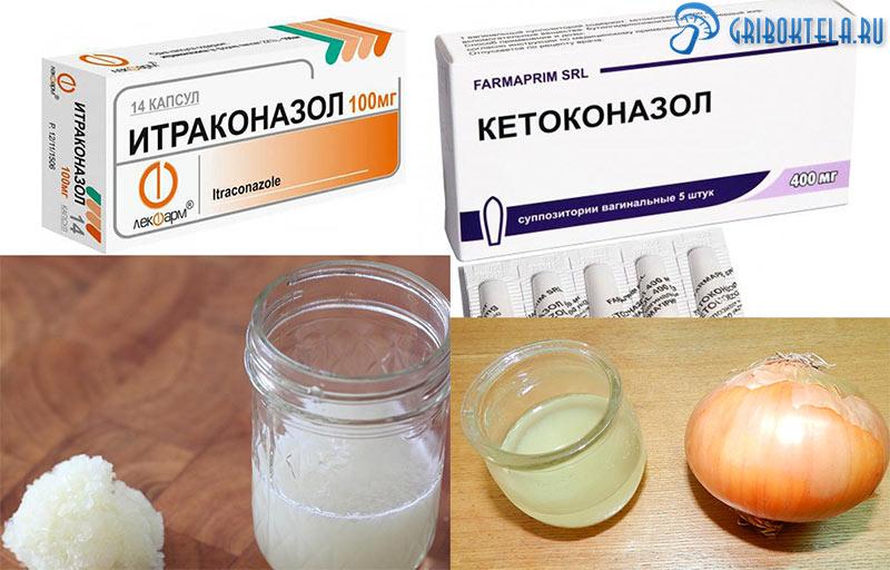 Средства лечения Бластомикоза