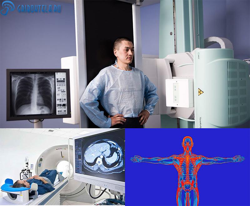 Методы диагностики бластомикоза