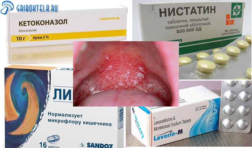 Лекарства от Орофарингеального кандидоза