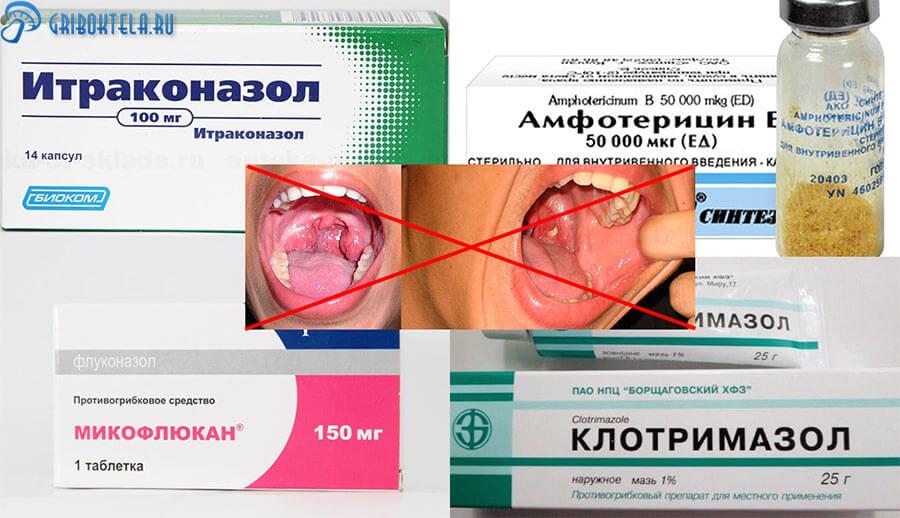 Лекарства от грибковой ангины