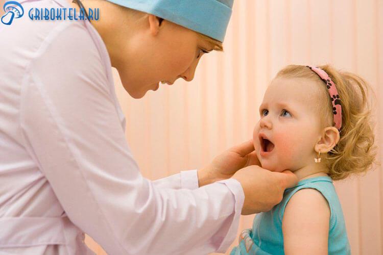 Выявление тонзилломикоза у ребенка