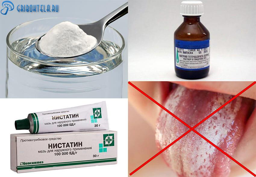 Лекарства от кандидозного стоматита