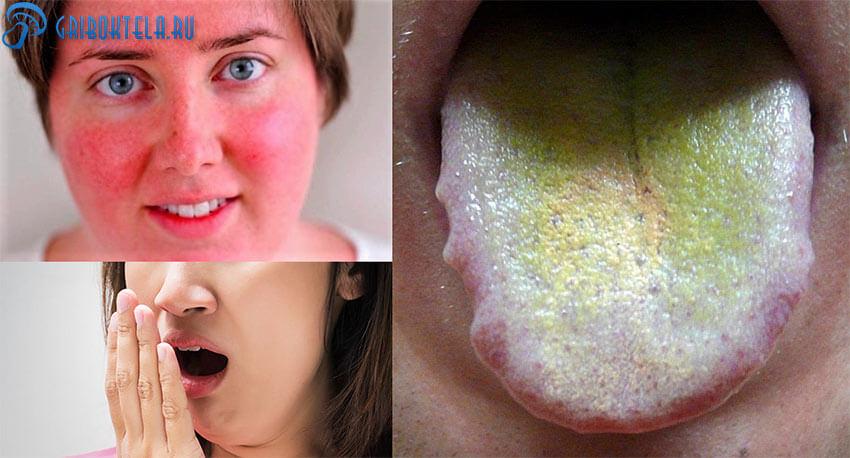 Симптомы кандидозного стоматита