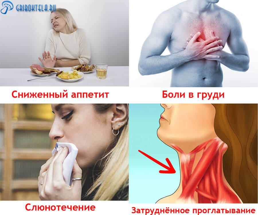 Первые симптомы молочницы в пищеводе