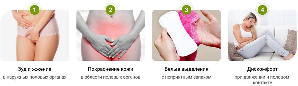 Симптомы урогенитального кандидоза у женщин
